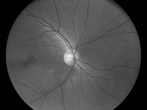 Камера цифровая офтальмологическая Optomed Smartscope